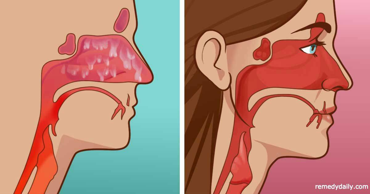 Заложенность носа и головные боли без температуры: в чём причина?