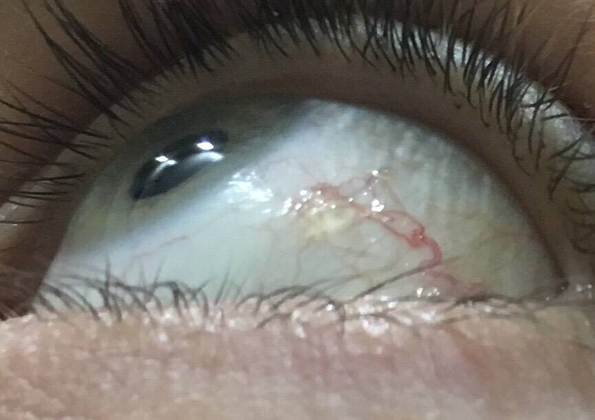 пленка на глазу у человека лечение