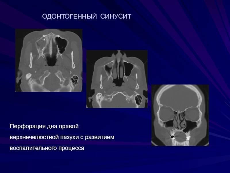 Симптоматика и лечение грибкового гайморита
