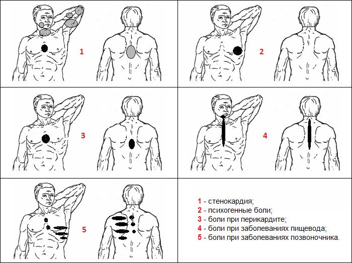 Как отличить боль в сердце от невралгии: локализация боли и симптоматика