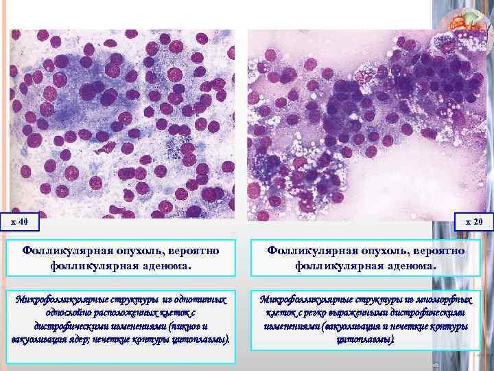 Аденома щитовидной железы. причины, симптомы, диагностика и лечение :: polismed.com