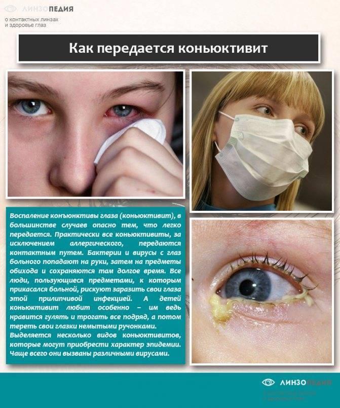 конъюнктивит заразен или нет