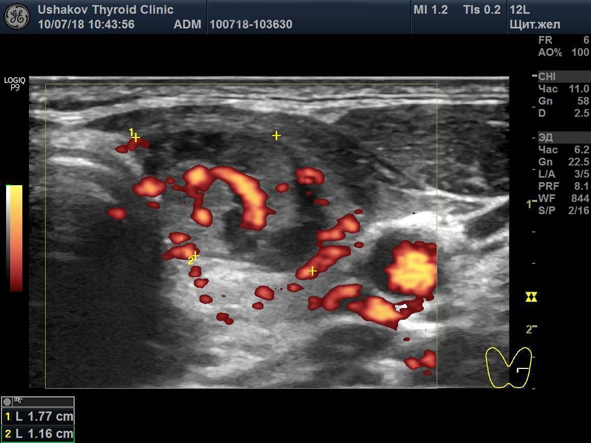 Усиленный кровоток в щитовидной железе что это значит