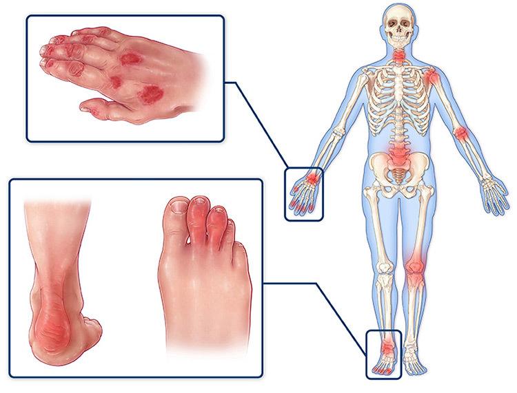 псориаз суставов симптомы