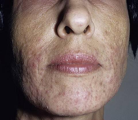 диета при пероральном дерматите на лице