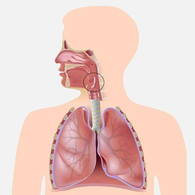 Синдром надгортанника – ком в горле