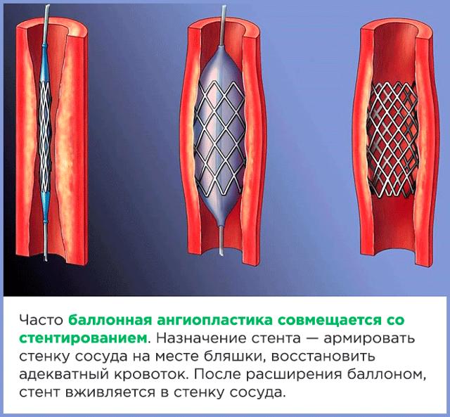 Интервенционная кардиология: ангиопластика и стентирование артерий