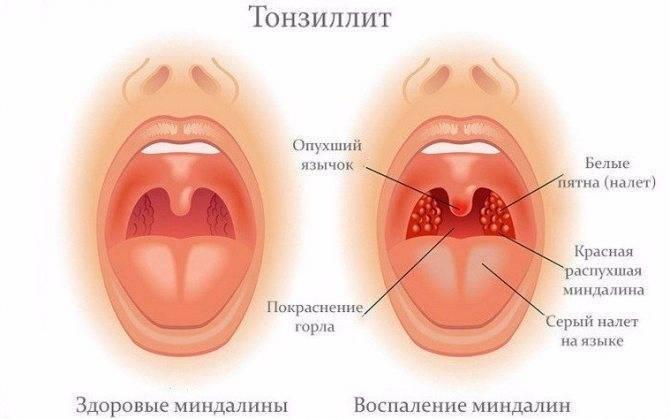 Тонзиллит: лечение народными средствами