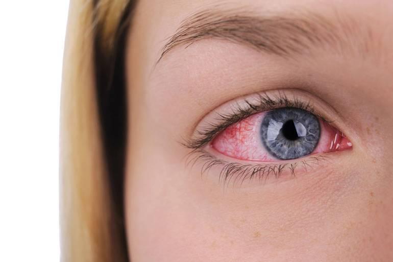Пелена на глазах — причины и лечение