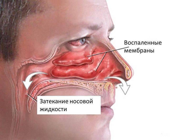 Ринит (насморк). описание, причины, симптомы, и лечение насморка