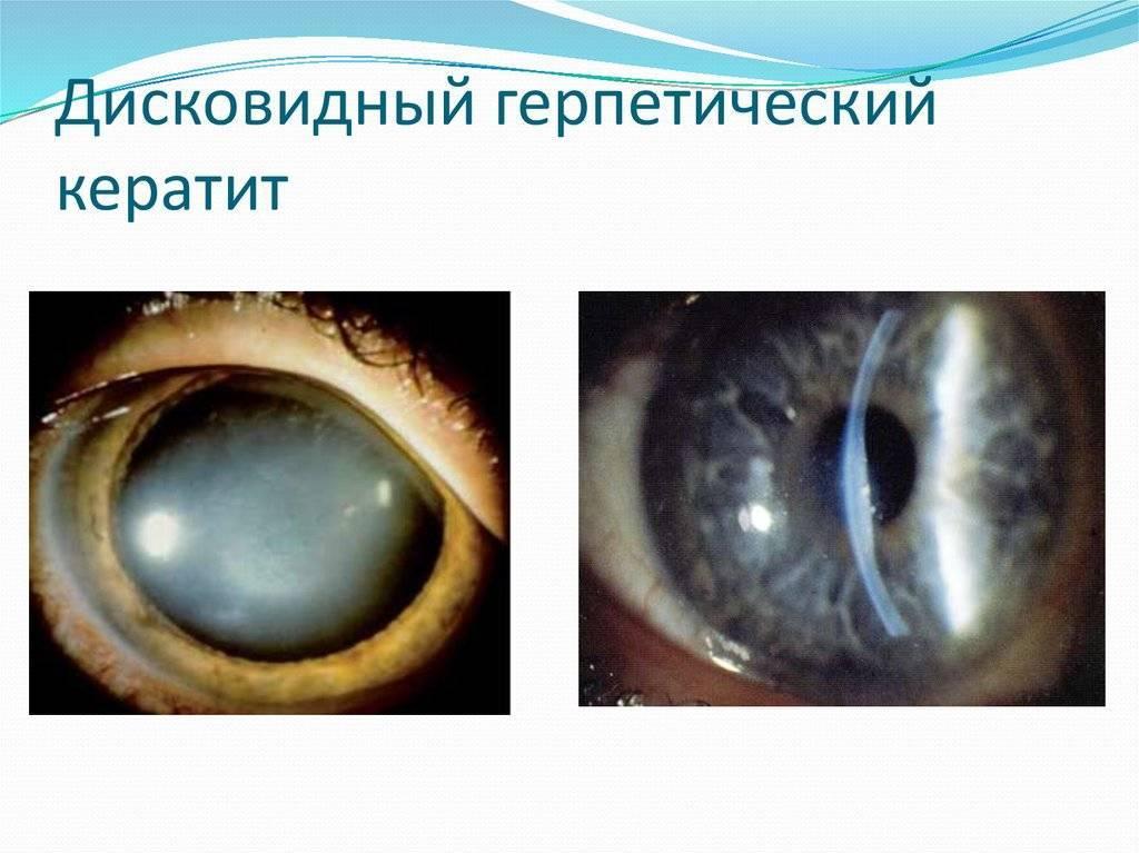 Герпетические заболевания глаз. клинические рекомендации.