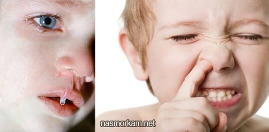 сопли с кровью у годовалого ребенка