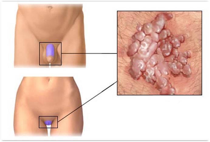 Беременность и герпес на губах и половых органах