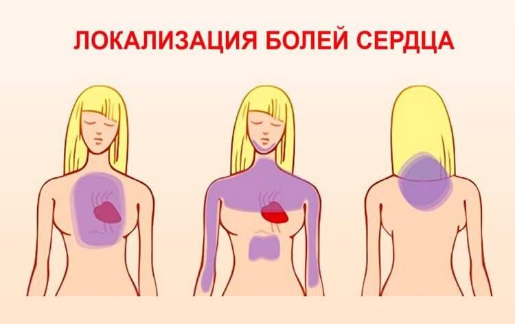 Как отличить невралгию от боли в сердце?