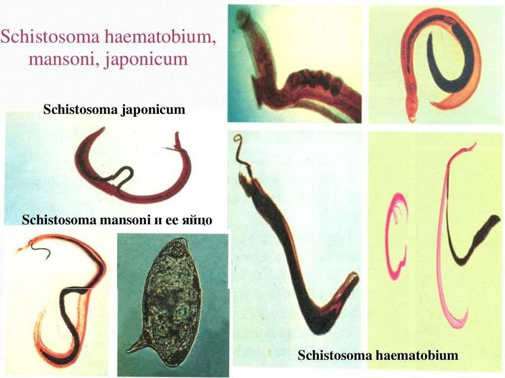 Шистосомоз: симптомы, диагностика, лечение