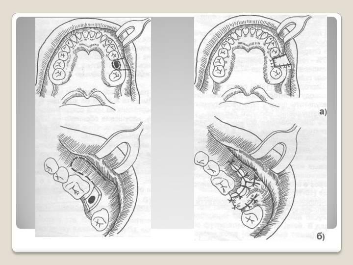 Удаление зуба, гайморова пазуха: перфорация и лечение, появление гайморита после извлечения верхнего корня, операция, открыт свищ