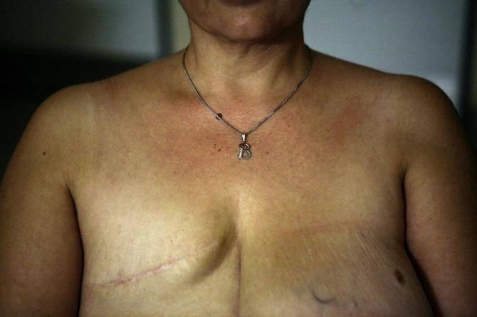 Мастэктомия с эндопротезированием молочной железы