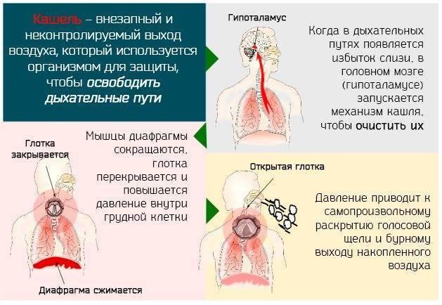 Cильный мокрый кашель