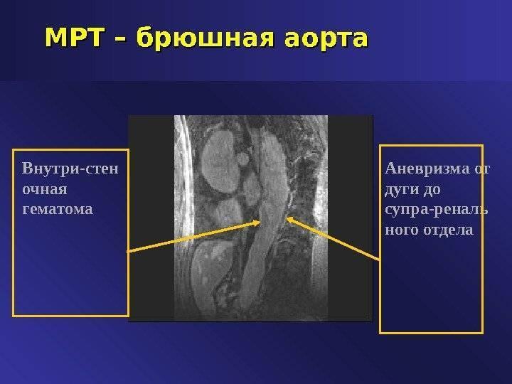 Симптомы и лечение атеросклероза брюшного отдела аорты