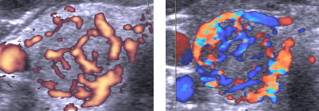 Усиление кровотока в паренхиме щитовидной железы