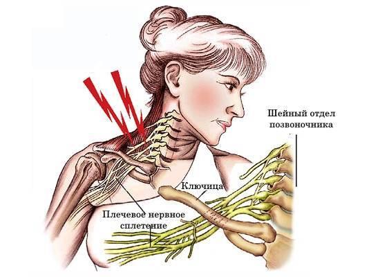 невралгия плеча