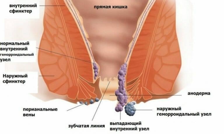Симптомы, лечение и профилактика тромбоза геморроидального узла