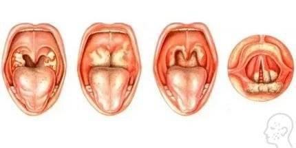 грибок горла симптомы лечение