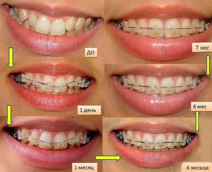 как выровнять зубы дома