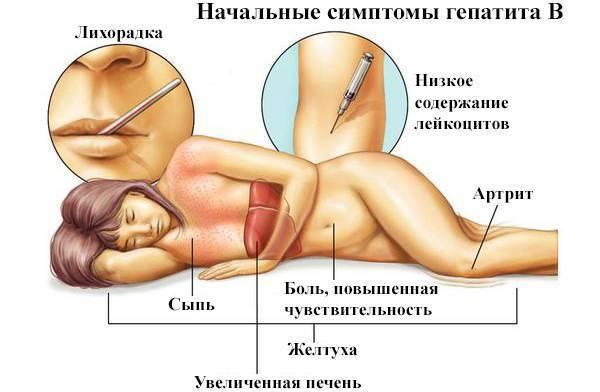 Последствия гепатита с у женщин