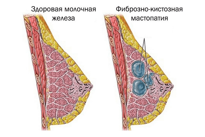 жжение молочной железы причины