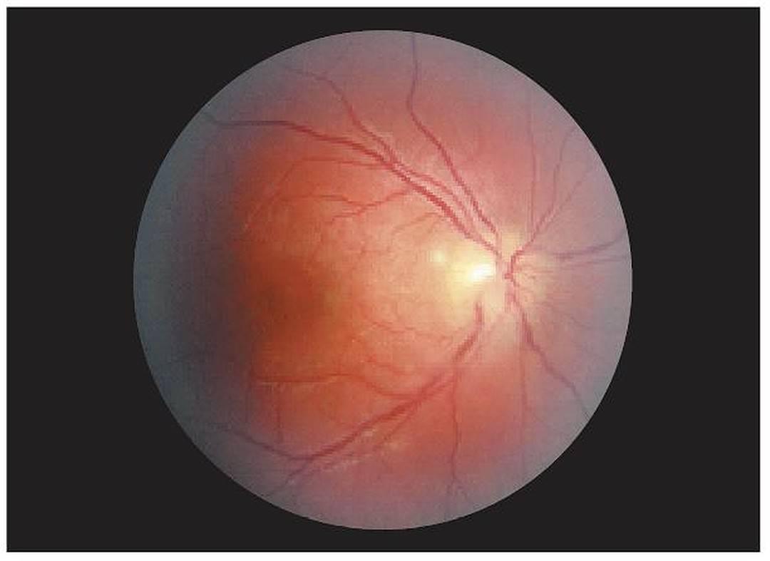 отек зрительного нерва симптомы