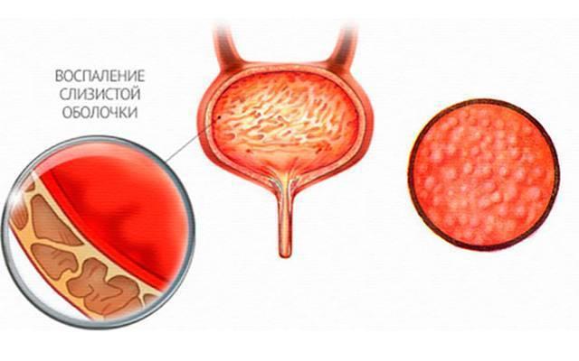 Лекарство от воспаления мочевого пузыря у мужчин