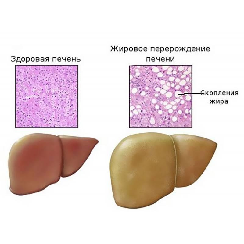 какими лекарствами лечить жировой гепатоз печени