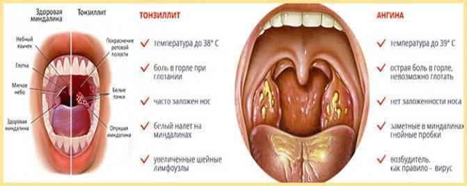 Сколько дней болит горло при ангине