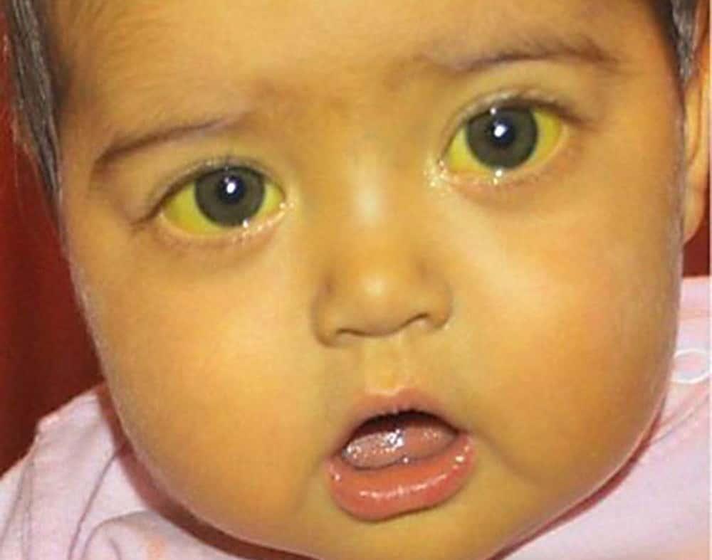 желтуха у детей симптомы и лечение