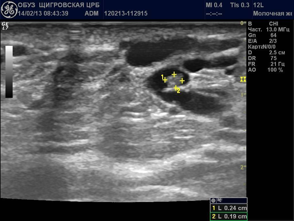 Внутрипротоковая папиллома молочной железы : причины заболевания, основные симптомы, лечение и профилактика