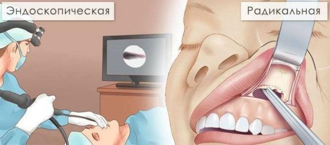 Как понять болит зуб или гайморит
