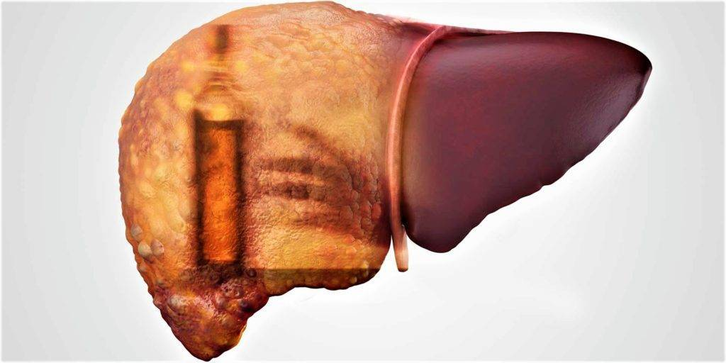 Гепатит алкогольный