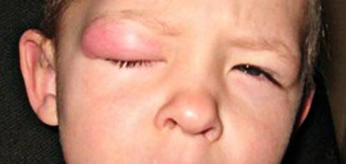 опухло веко от укуса комара