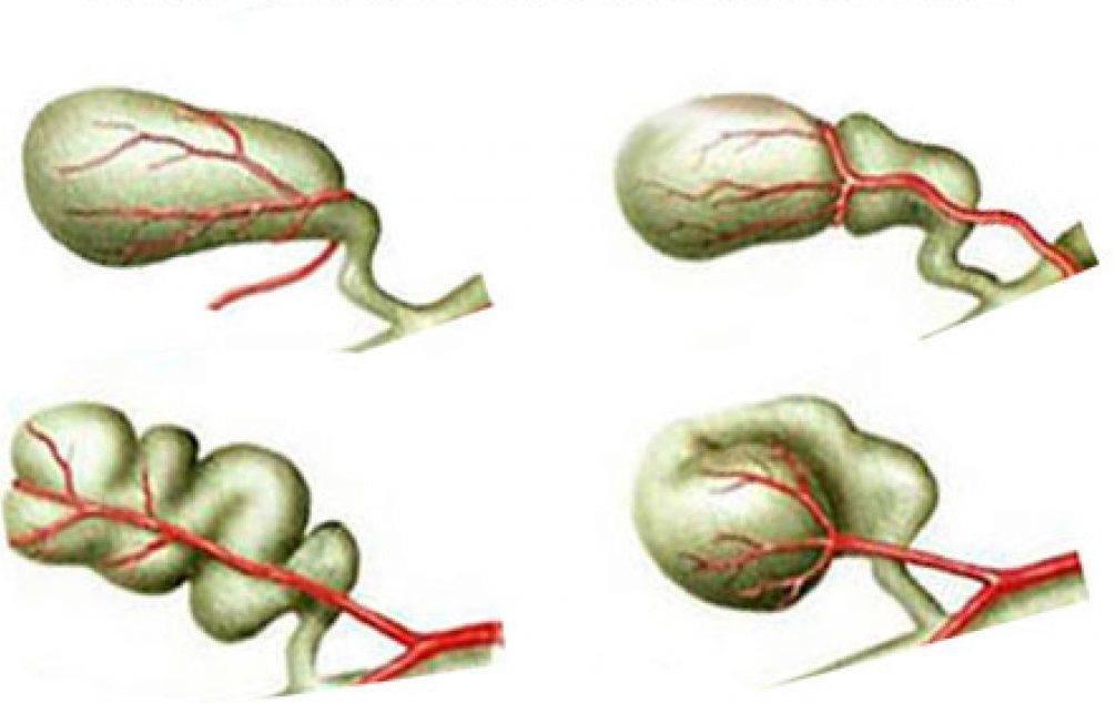 врожденная деформация желчного пузыря