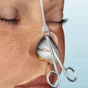Искривление носовой перегородки у детей