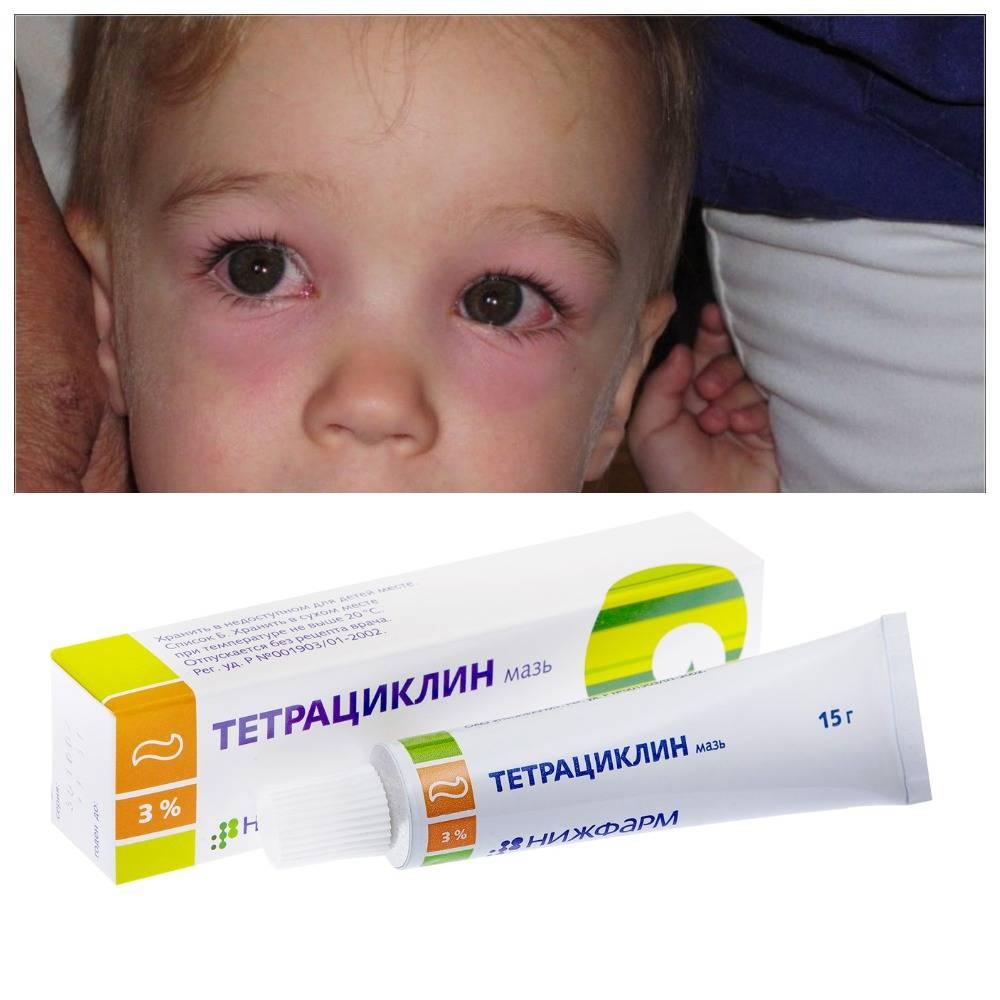 Тетрациклин мазь глазная – инструкция по применению для глаз
