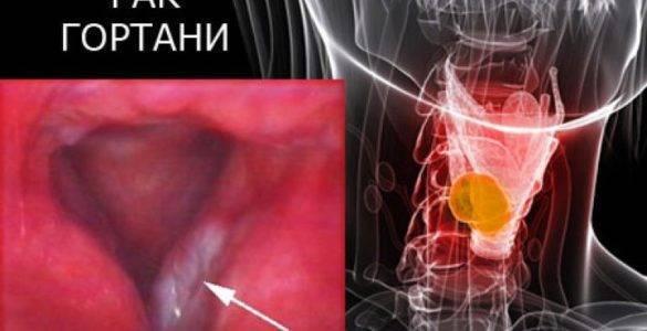 Рак гортани 3 степени: лечение и прогноз болезни