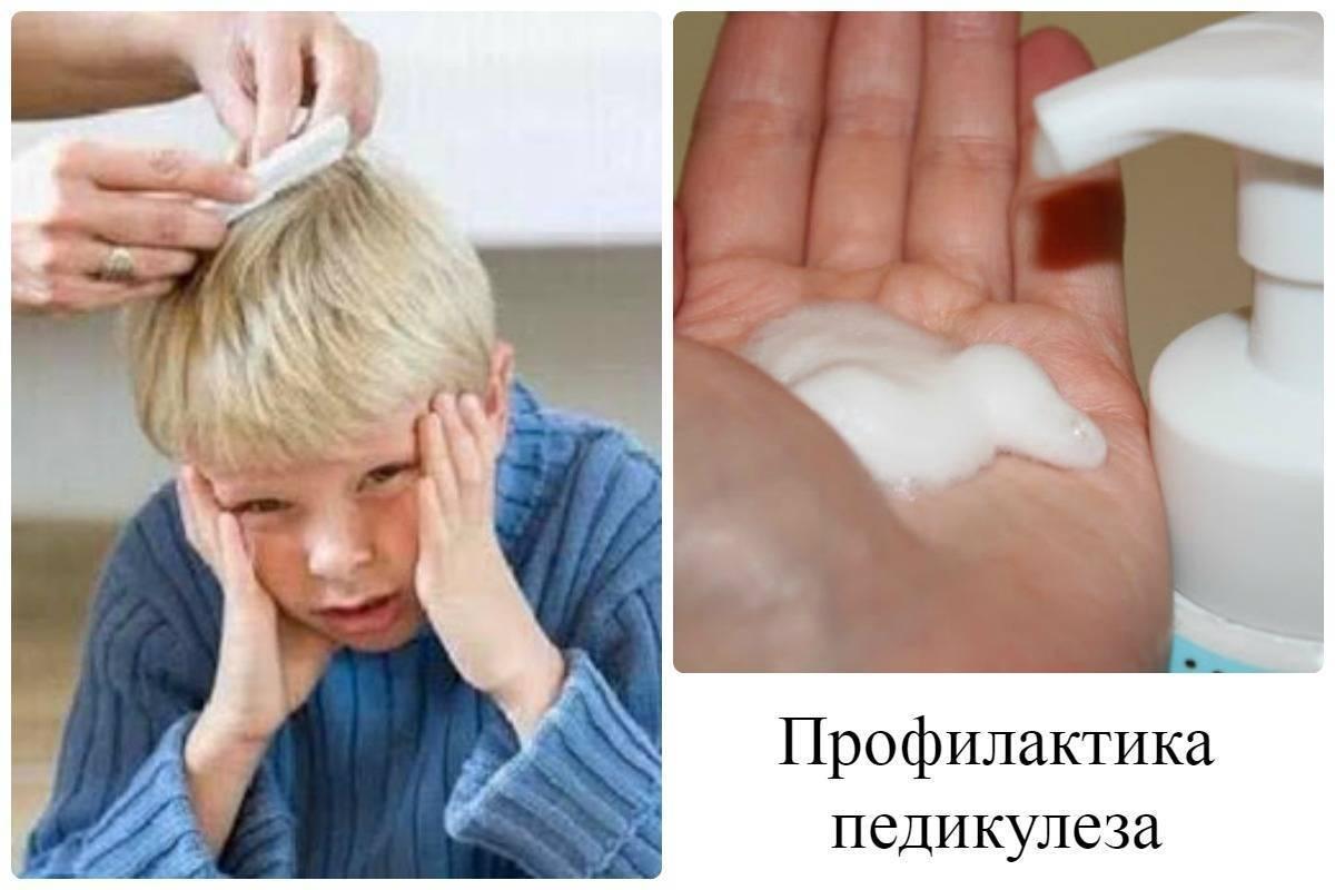 Педикулез – причины, профилактика, меры борьбы для детей и взрослых