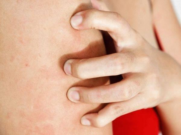Кожный зуд при заболеваниях печени. причины появления высыпаний