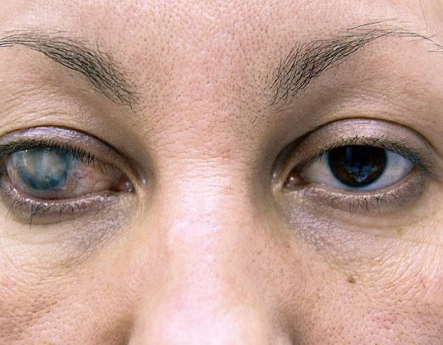 Причины появления пленки на глазу и лечение