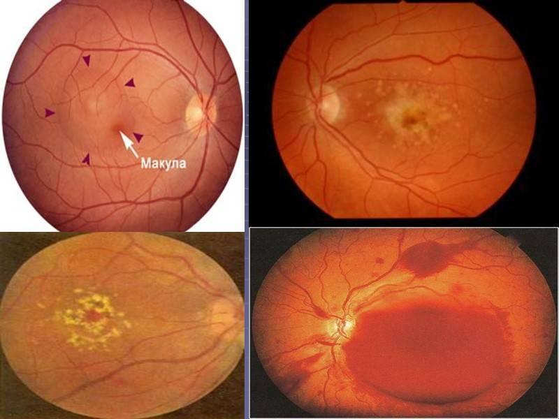 Атрофия зрительного нерва - симптомы  и лечение