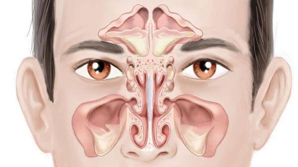 Риносинусит: симптомы и лечение