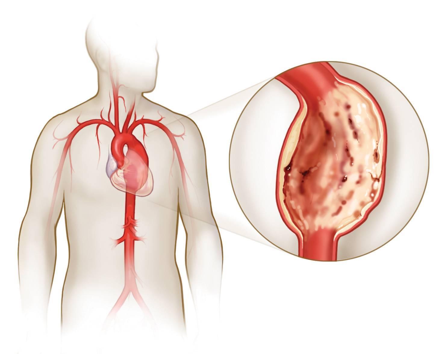 Признаки и современное лечение атеросклероза аорты