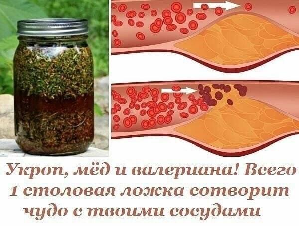 мед атеросклероз